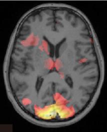 Escáner cerebral que muestra información asociada con un recuerdo de miedo. Imagen: Ai Koizumi. Fuente: Universidad de Cambridge.