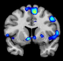 Así se ve el cerebro durante una experiencia espiritual. Foto: Jeffrey Anderson