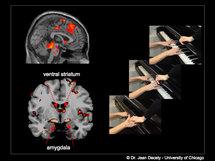 Activación neuronal ante imágenes de daño intencionado. Fuente: Universidad de Chicago.