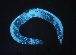 C. Elegans. Fuente: National Human Genome Research Institute.
