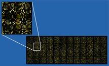 Chip de ADN. Fuente: Wikimedia Commons.