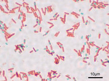 Esporas de Bacillus Subtilis. Fuente: Wikimedia Commons.