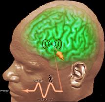 Registros neuronales directos han revelado que tres aspectos fundamentales y diversos del lenguaje son registrados en una pequeña región del cerebro y en un breve periodo de tiempo. Fuente: Ned T. Sahin, PhD UCSD.