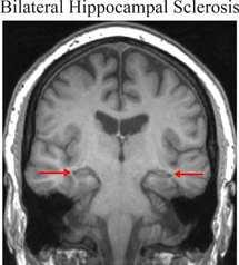 Imagen del cerebro de un paciente con esclerosis bilateral del hipocampo. El hipocampo está indicado por las flechas y es más pequeño que un hipocampo normal. Fuente: UCL.