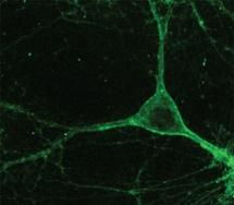Neurona de ratón que expresa el gen de la proteína Arch. Fuente: MIT.