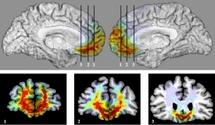 Determinan el área del cerebro que crea los juicios morales