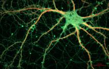 Neurona de ratón. Cultured Rat Hippocampal Neuron.