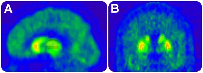 Imágenes de la radioacticidad regional en el cerebro, durante la investigación. PLosOne.