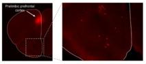 Las células fluorescentes se aprecian en las regiones cerebrales de la corteza prefrontal prelímbica. En el recuadro (ampliado a la derecha) se reflejan las células en las regiones olfativas del cerebro que se proyectan hacia el área prefrontal del córtex. Andrew Moberly, Perelman School of Medicine, Universidad de Pensilvania.