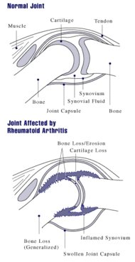 Ilustración de una articulación afectada por Artritis reumatoide. Wikipedia