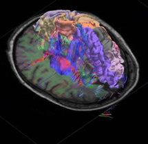 Tracto de fibras nerviosas en 3D, segmentación cortical e imagen IRM del cerebro humano. Fuente: Allen Institute for Brain Research.