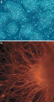Células madre embrionarias humanas. A. Colonias de células aún no diferenciadas. B. Células nerviosas. Fuente: Wikimedia Commons.