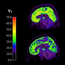 Los cerebros de individuos con trastorno de estrés postraumático y pensamientos suicidas (arriba) muestran niveles más altos de mGluR5 en comparación con los individuos sanos (abajo). Yale University.