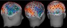 Imágenes de la creatividad cerebral. EEG Laboratory.