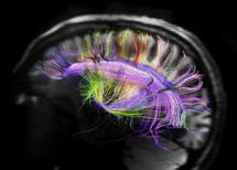 La organización neuronal  traza caminos en forma de rejilla. Imagen: MGH UCLA Human Connectome Project
