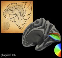 El moderno mapa de la visión en el cerebro humano y el antiguo (al fondo), del año 1918. Fuente: Perelman School of Medicine.