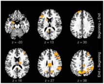 Actividad neuronal relacionada con la improvisación lírica. Fuente: Scientific Report.