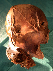 Cabeza momificada de Enrique IV. Imagen: Philippe Charlier. Fuente:  CSIC.