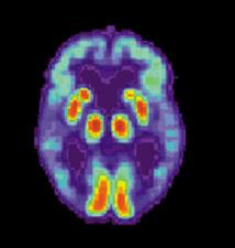 Una tomografía PET de un cerebro con Alzhéimer. Fuente: Wikipedia.