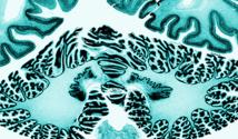 Una de las  7.400 secciones del cerebro escaneadas para crear el atlas 3D. Imagen: Claude LePage. Fuente: AAAS.