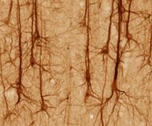 Neuronas de la corteza cerebral. Imagen: UC Regents Davis campus. Fuente: Wikipedia.