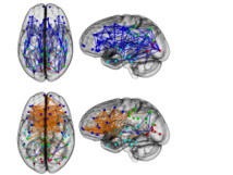 En la parte superior el cerebro masculino, en la inferior el femenino. En azul, las conexiones en un mismo hemisferio, en naranja los circuitos entre hemisferios. Fuente: PNAS/SINC.
