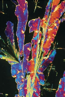 Cristales de propranolol. Sidney Moulds / Science Photo Library. The dana Foundation.