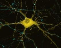 Neurona humana que muestra la formación de actina como respuesta a la estimulación.  Imagen: Michael A. Colicos. Fuente: UC San Diego.