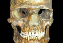 Cráneo de K14. Fuente: Museo Pedro el Grande (San Petersburgo).