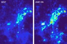 Imágenes que muestran la afluencia de iones de calcio en las neuronas, como resultado de la excitación magnetotérmica llevada a cabo con campos magnéticos alternos, y en presencia de nanopartículas magnéticas. Imagen: Cortesía de los autores de la investigación. Fuente: MIT.