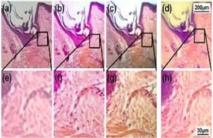 La fila superior muestra un folículo capilar y piel humana a través de un microscopio a distintas resoluciones -a) 40, b) 100 y c) 200- y a través de un smartphone con la lente de bajo coste (d). La fila de abajo son las imágenes ampliadas. Fuente: Universidad de Houston.