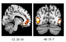 La imagen muestra una actividad incrementada en los cerebros de los portadores de la variante por delación del gen ADRA2b. Fuente: UBC.