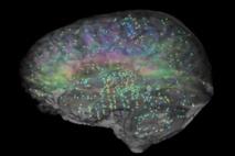 Atlas del cerebro. Fuente: Allen Institute.