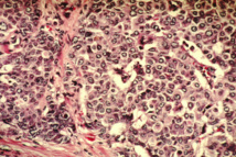 Células de cáncer de mama. Fuente: Wikipedia.