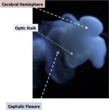 Algunas de las partes del cerebro organoide: hemisferio cerebral, pedúnculo óptico y curva cefálica, todas ellas propias del cerebro fetal. Fuente: OSU.