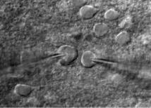Células aisladas en la corteza visual de un ratón. Fuente: Alfredo/Kirkwood (JHU)