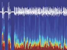 Señales cerebrales EEG registradas de ratón, mientras este se despertaba de la anestesia gracias a la estimulación con optogenética del circuito cerebral encontrado. Fuente: Universidad de Berna.