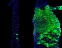 Intestinos de las moscas que muestran los tumores inducidos genéticamente (en verde). El crecimiento es significativamente mayor en los intestinos femeninos (derecha) que en los masculinos (izquierda). Las células que se muestran en rojo son las que se multiplican. Fuente: MRC CSC.