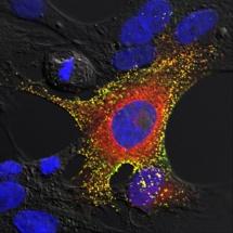 Células de murciélago infectado de Hendra. Fuente: Csiro.