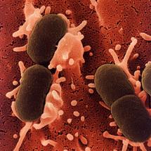 Escherichia coli. Fuente: Kimicontrol.
