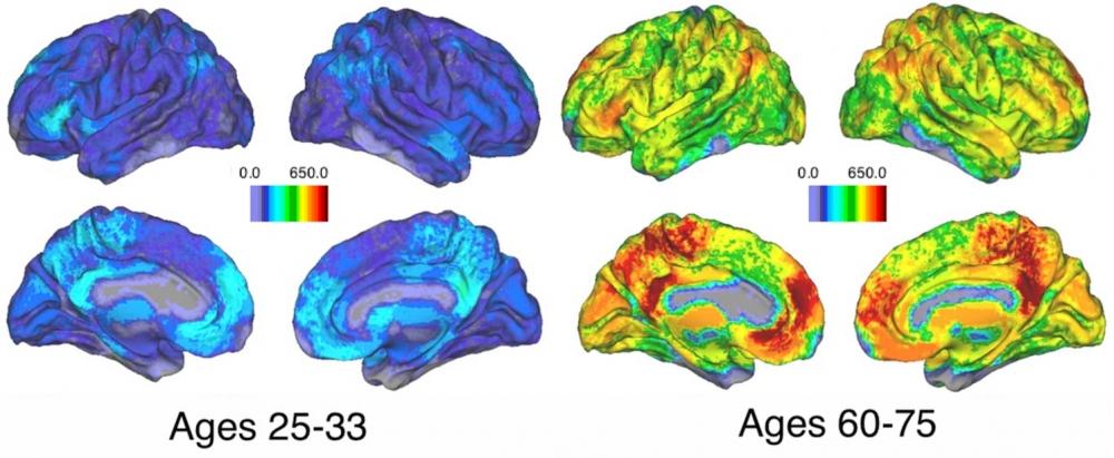 Los grupos de regiones del cerebro que sincronizan su actividad durante las tareas relacionadas con la memoria se hacen más pequeños y más numerosos con la edad. Imagen: UCSB