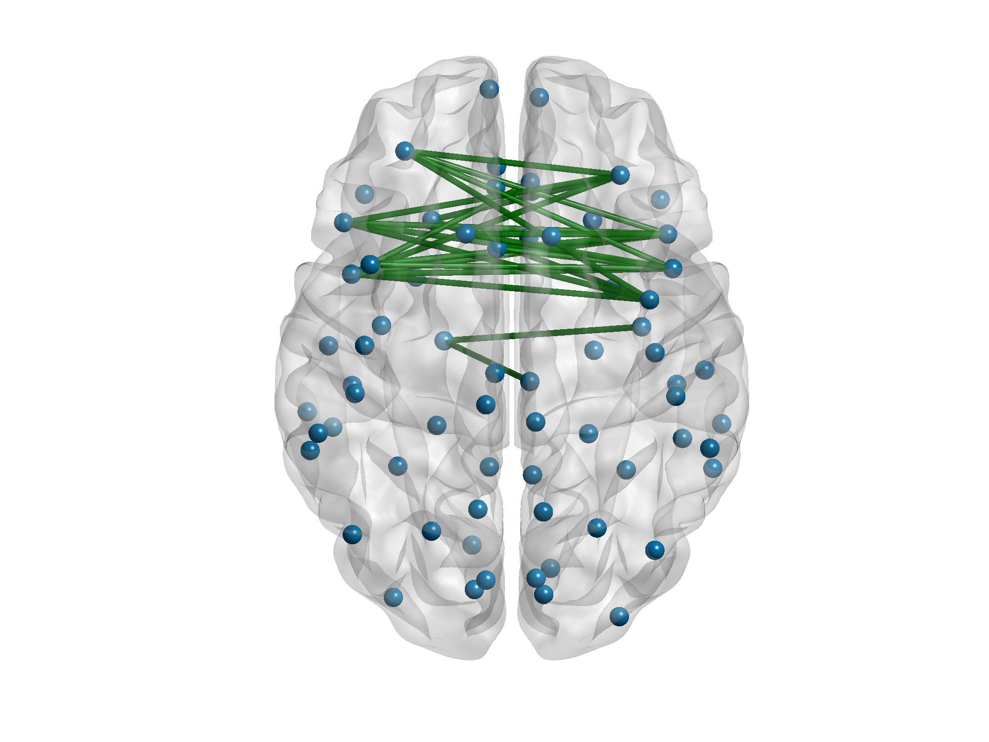 En verde, las conexiones de la creatividad. Imagen: Daniele Durante, University of Padova