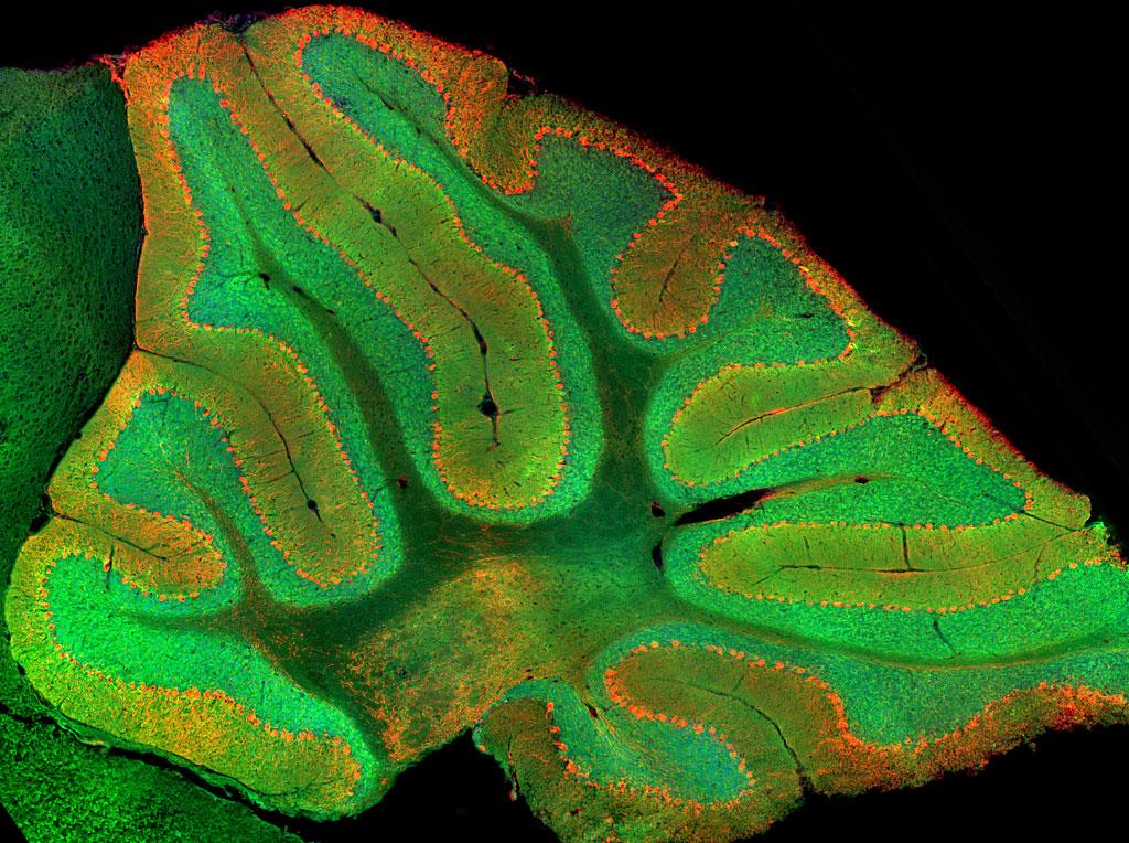 En verde las células granulares del cerebelo. Imagen: Mark Wagner.