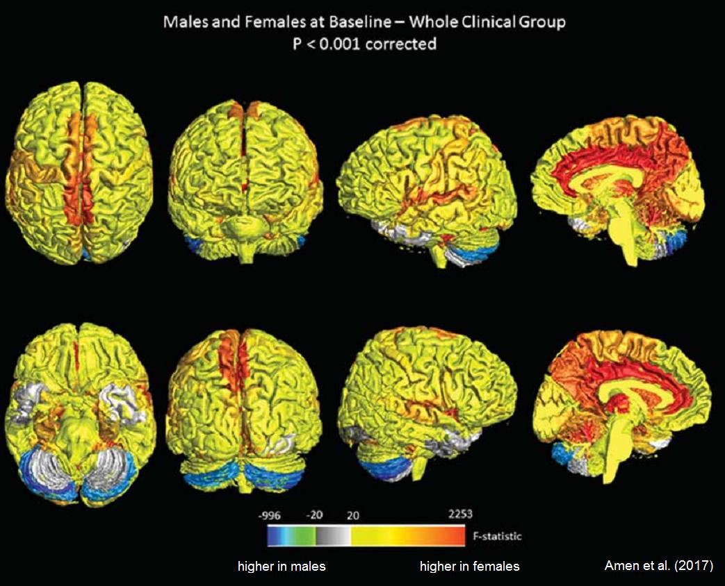 Diferencias de la actividad del cerebro de hombres y mujeres saludables en estado de descanso y de concentración. El color rojo representa la parte más activa de las mujeres, el azul de los hombres. /Journal of Alzheimer's Disease 2017