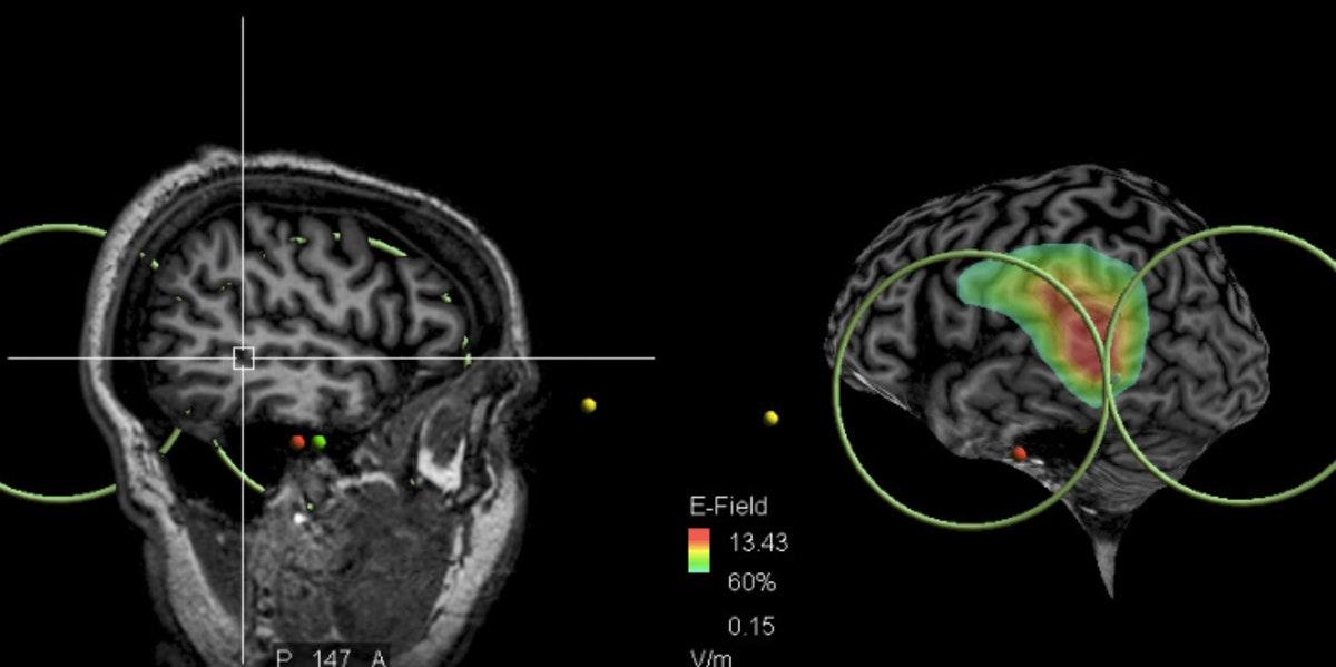 La zona del cerebro impliaca en las voces que oyen los esquizofrénicos. Foto: Universidad de Caen.