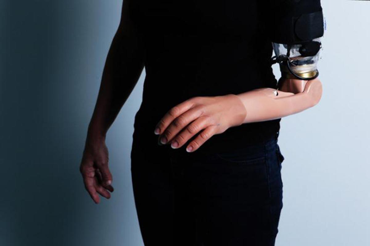 Una persona amputada equipada de una prótesis de brazo sofisticada después de una operación TMSR. Crédit: Irit Hacmun, Tel Aviv./EPFL