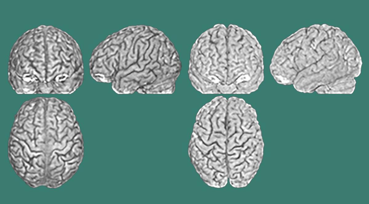 Tres escaneos cerebrales (de la parte frontal, lateral y superior) de dos cerebros diferentes (representados a la izquierda y a la derecha) que pertenecen a gemelos. Los surcos y las crestas son diferentes en cada persona.  Imagen: Lutz Jäncke, UZH