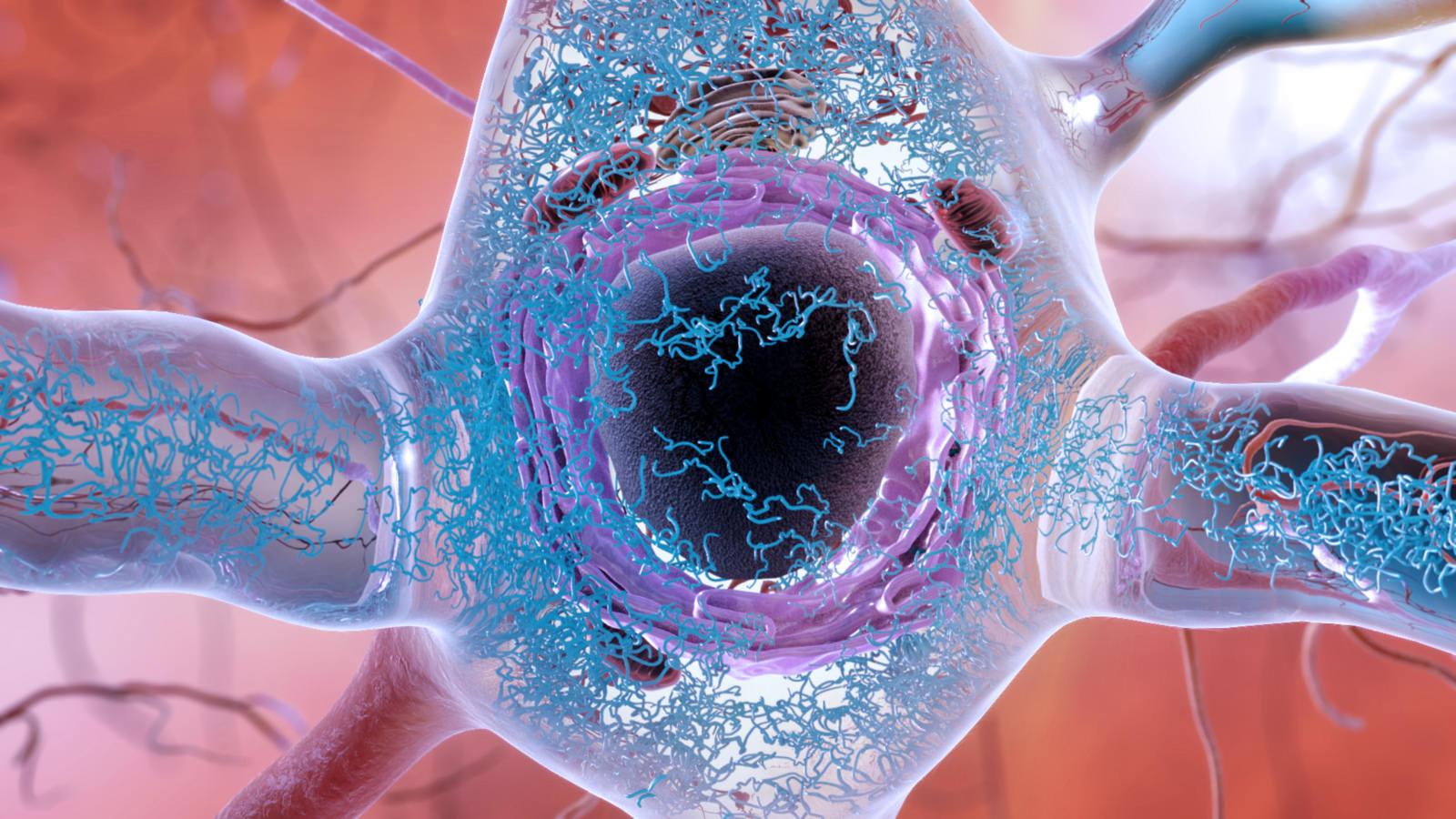 Las acumulaciones anormales de una proteína llamada tau (en azul en la imagen) pueden acumularse dentro de las neuronas, formando hilos enredados y, finalmente, dañando la conexión sináptica entre las neuronas. Imagen: National Institute on Aging.