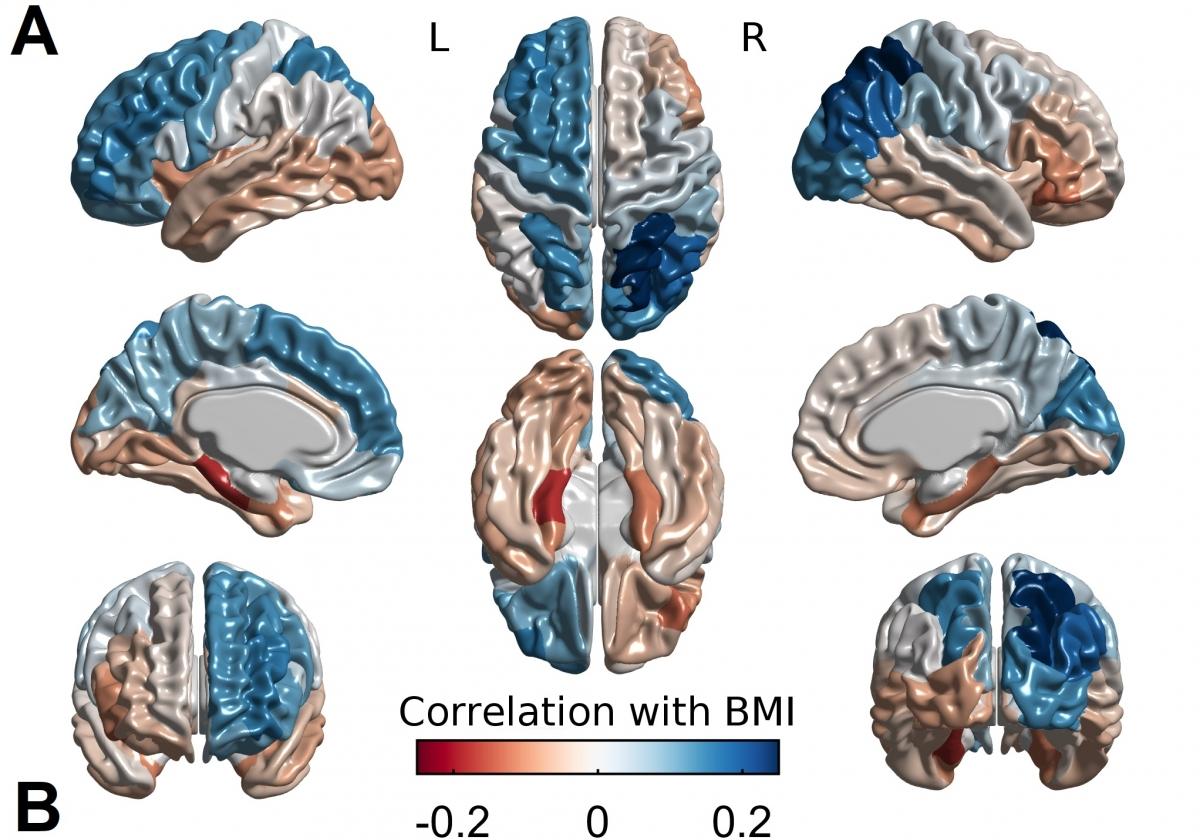Relación entre obesidad, cerebro y genética según el Índice de Masa Corporal (BMI en la imagen). McGill University.