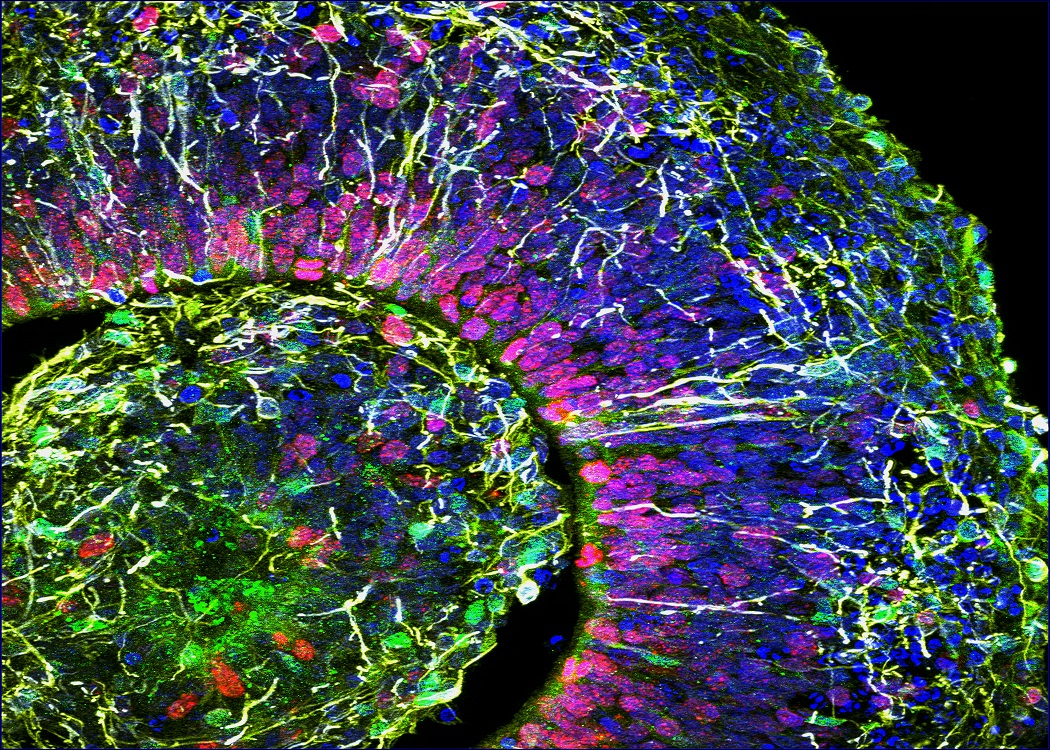 Falso color de una porción de organoide cerebral humano de un paciente con trastorno del espectro autista. Forto: Alysson Muotri, UC San Diego Health.